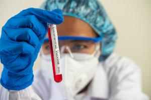 Test serologicos Coronavirus